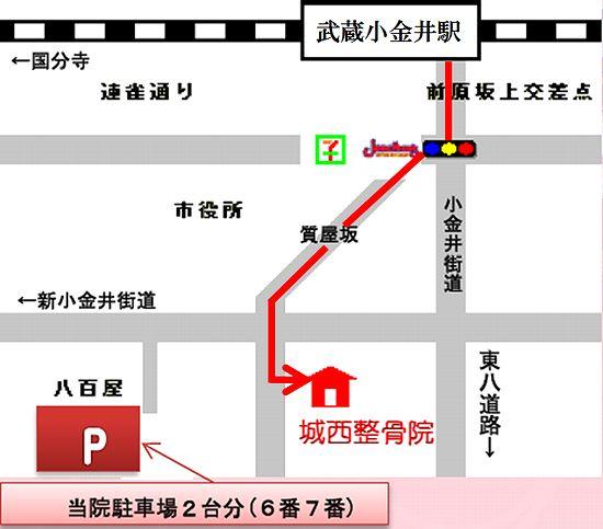 武蔵小金井駅、花小金井、小金井市、小平市、接骨院・整骨院・整体院、腰痛などは城西整骨院